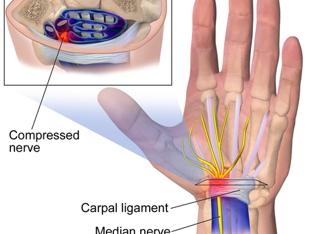 Working from home making you sore? Carpal tunnel, maybe?