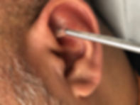 Auricular reflexology, ear seeding in ear reflexoloy to help ease aches and pains in the body.