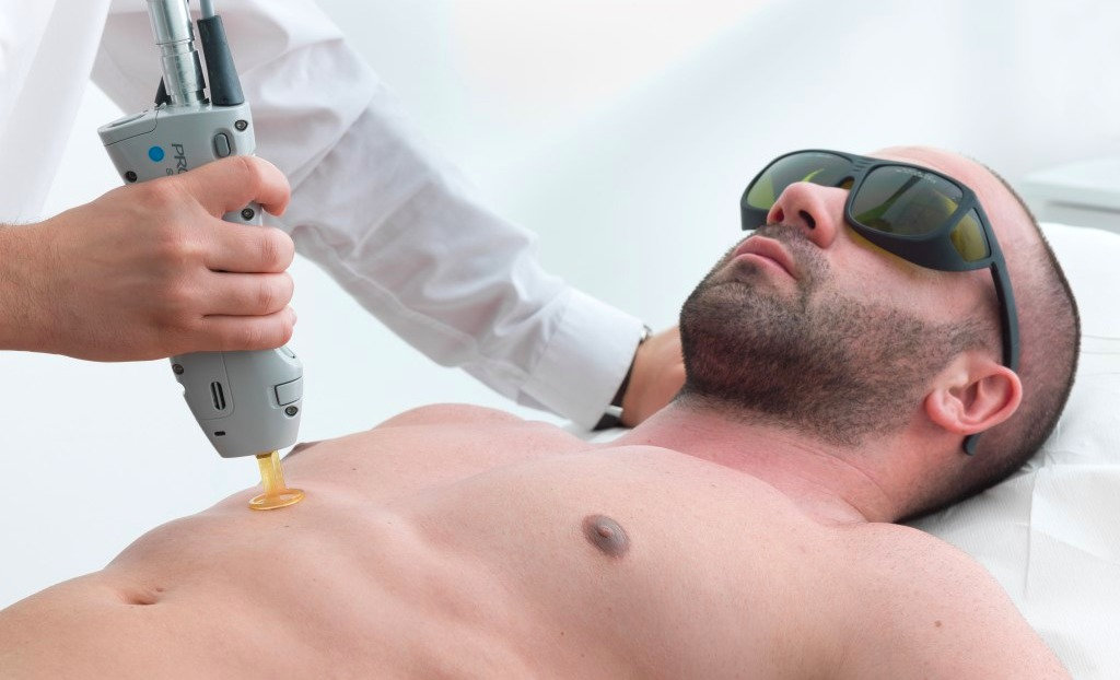 Laser Hair Removal-Large Area