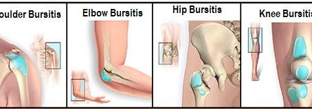 What is bursitis?