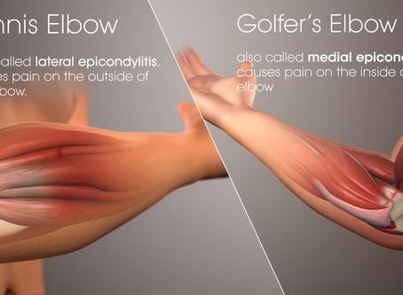 Tennis Elbow / Golf Elbow (Lateral Epicondylitis)