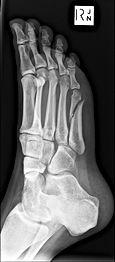 X-RAY FOOT RIGHT SIDE 0002.jpg