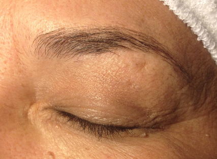 before brow tattoo