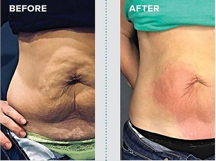 Five fat reduction.jpg