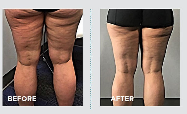 One cellulite session.jpg