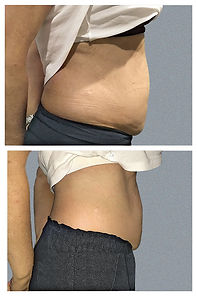 5 fat reductions.jpg