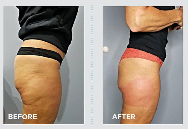 Five cellulite session.jpg