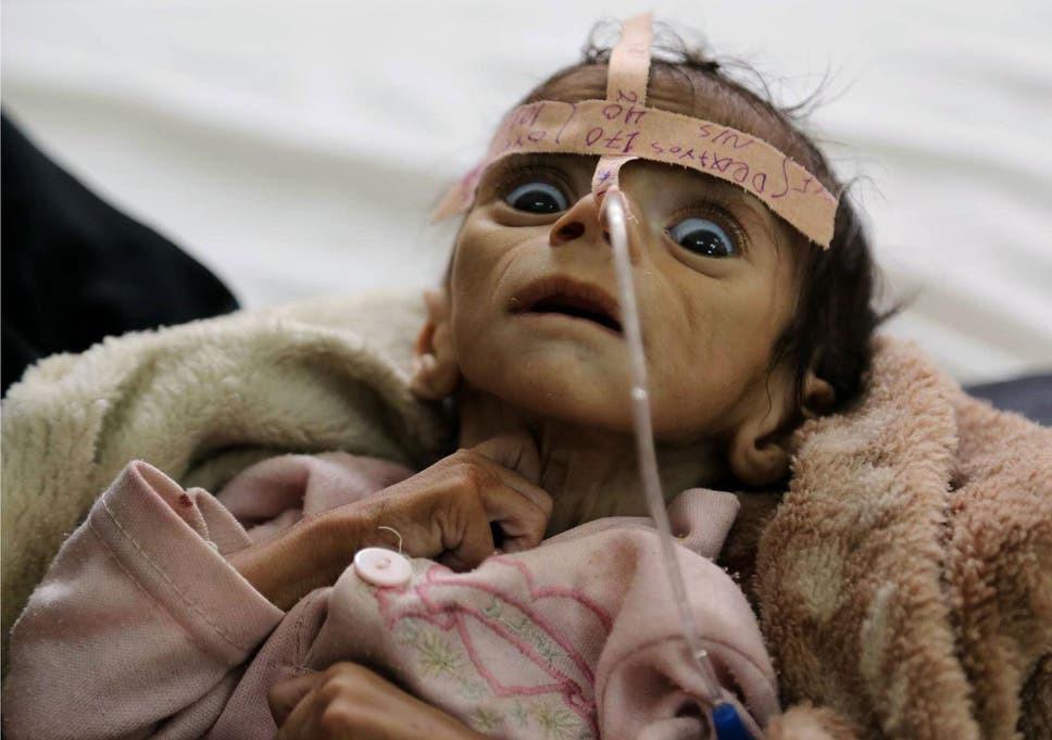 Dying Yemen child