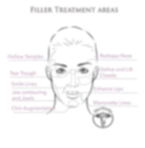 Chin Augmentation, tear trough, smile lines, temples, nose filler, lip filler, jawline contouring, lip enhancement, dermal fillers, filler Toronto
