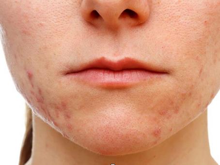 Adult Acne - It Happens...