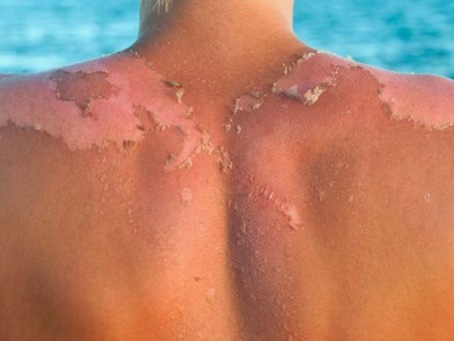 HOW THE UV INDEX AFFECTS YOUR SKIN