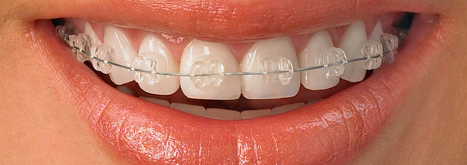 Ortodonzia fissa tradizionale