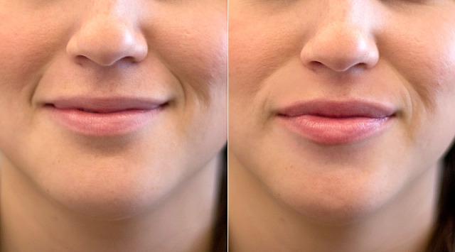 Get Full, Kissable Lips
