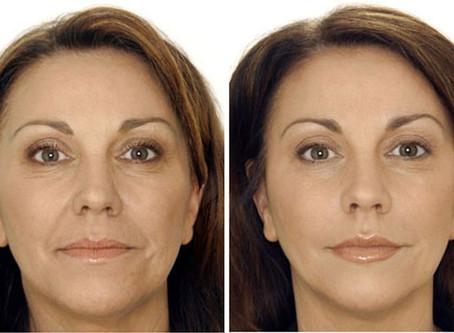Do You Need Botox Or Filler