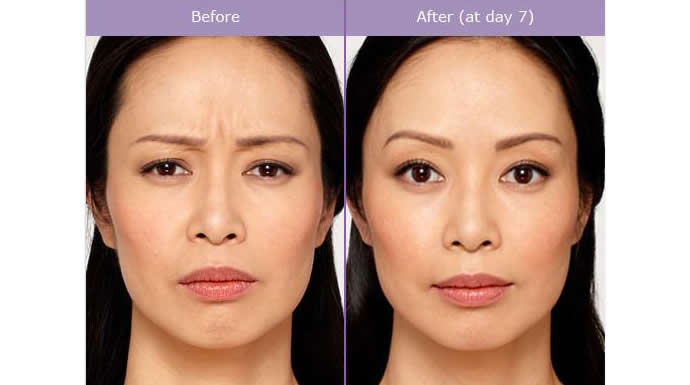 Get Rid of Frown Lines