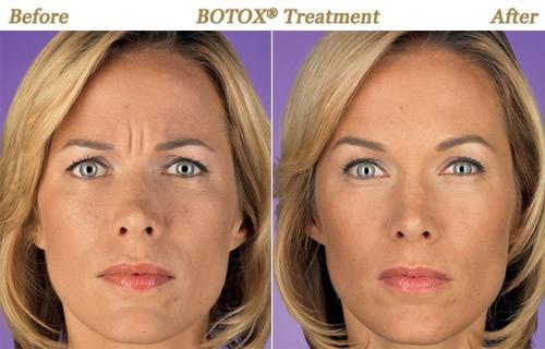 LaBelles offers Botox Services