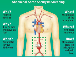 Abdominal aortic aneurysm - Us older men need to pay this attention.