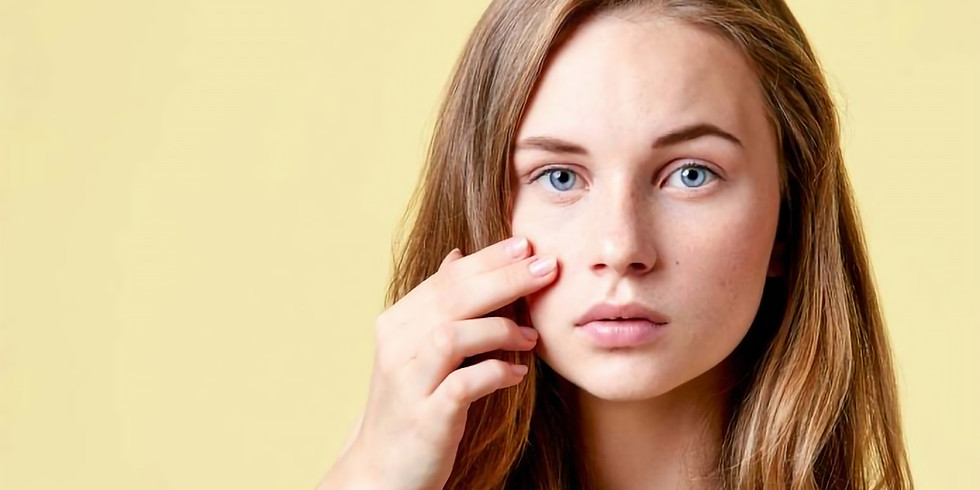 Free Workshop: Natural Solutions for Acne