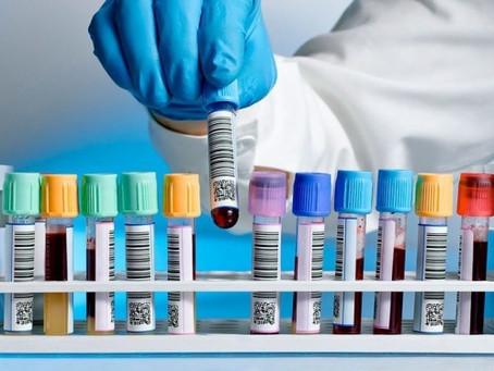 Planos de saúde devem cobrir testes para a covid-19, determina ANS