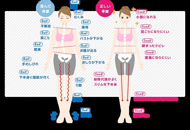 伊万里の整骨院「ごう整骨院伊万里院」|腰痛|肩こり|体の歪み|猫背|治療|佐賀県伊万里市