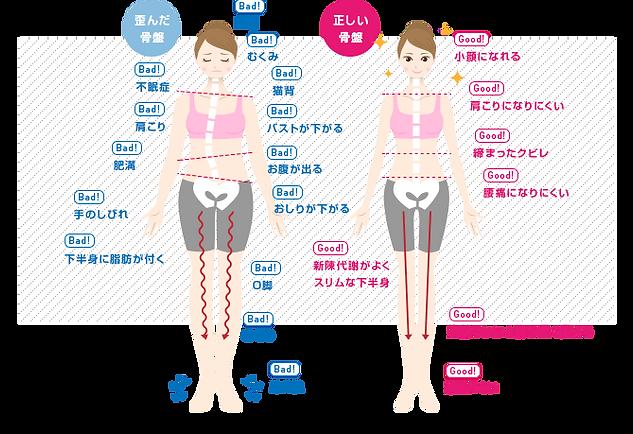 伊万里の整骨院「ごう整骨院伊万里院」|腰痛|肩こり|治療|歪み|ダイエット|楽トレ|猫背|姿勢測定|佐賀県伊万里市