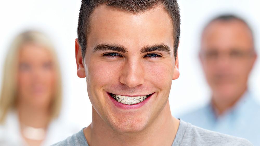 Você precisa de aparelho dentário? Se você tem essa dúvida vale a pena consultar um ortodontista.