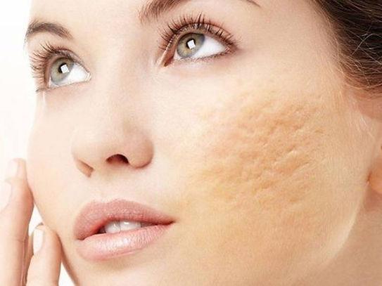 Acne Scar Treatment White.jpg