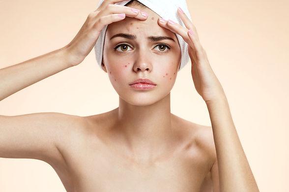 Acne Treatment White.jpg