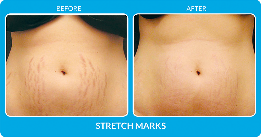 StretchMarks_B&A.png