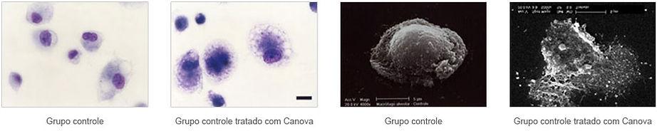 macrófagos2.jpg