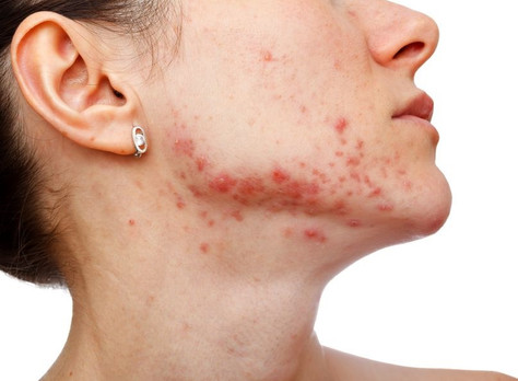 Acne: What Causes It and What You Can Do About It