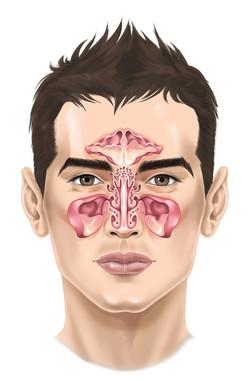 sinusitis01