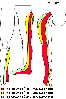 rwa kulszowa S1, ból korzniowy S1