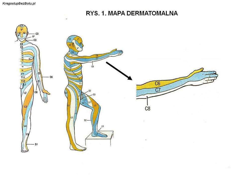Mapa dermatomalna, ból promienujący od przepukliny, paresterje od przepukliny dysku, przepuklina krążka zaburzenia czucia