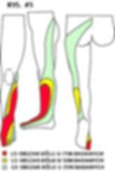 Rwa kulszowa, ból korzeniowy L5