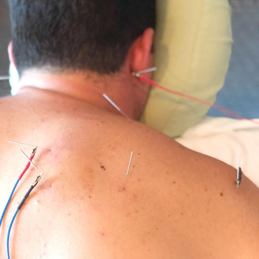 E-Stim for Shoulder/Neck Pain