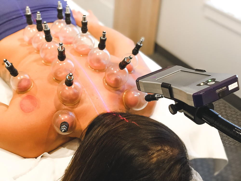 Cupping and Cold Laser Therapy at Kacie Hill Acupunture