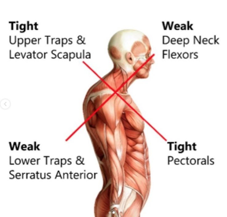 Text Neck Muscle Weaknesses