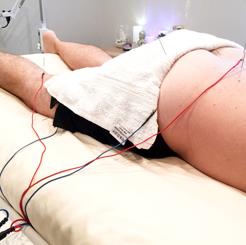 ElectroAcupuncture for Low Back Pain_edi