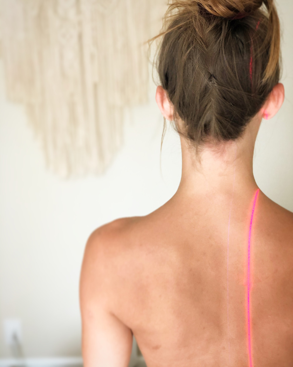 Cold Laser Therapy at Kacie Hill Acupuncture
