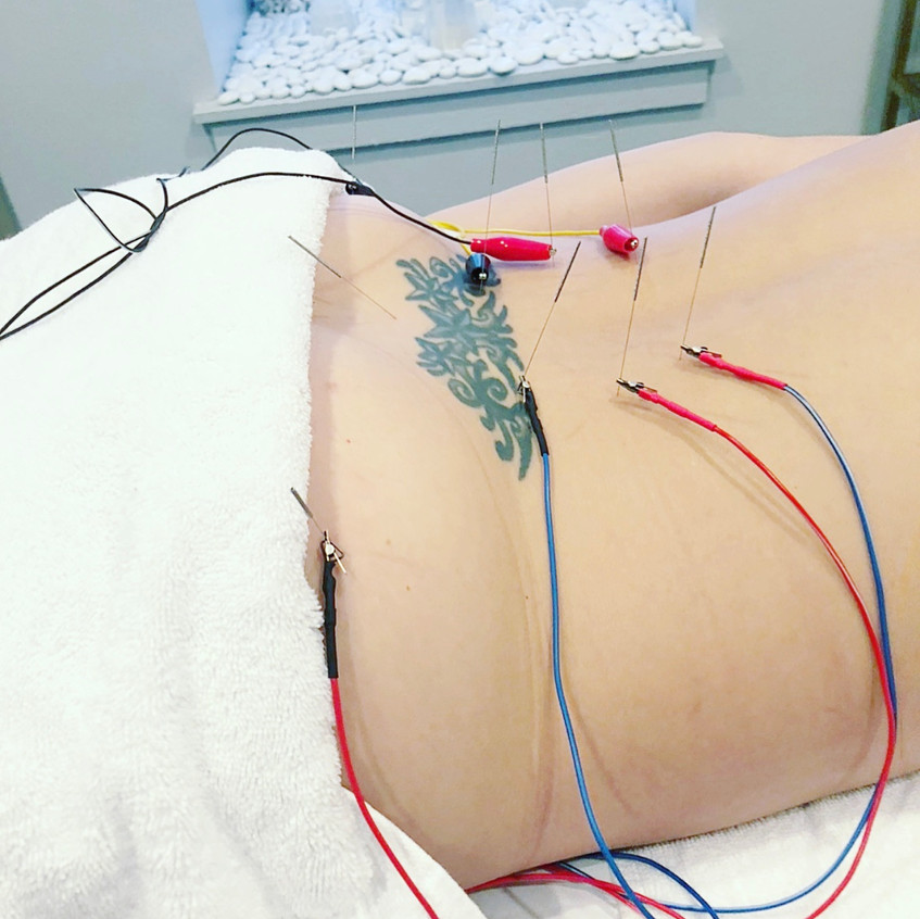 ElectroAcupuncture for Low Back Pain