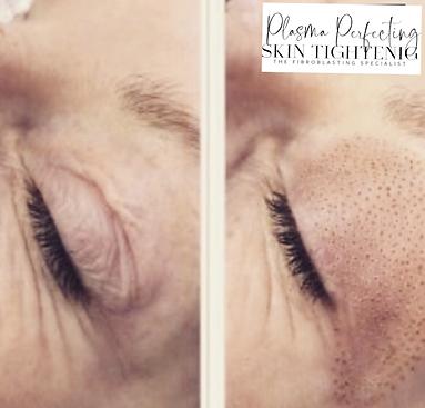 Plasma-Perfecting-Eyelid-2.png