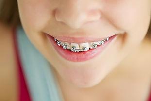 Silver braces