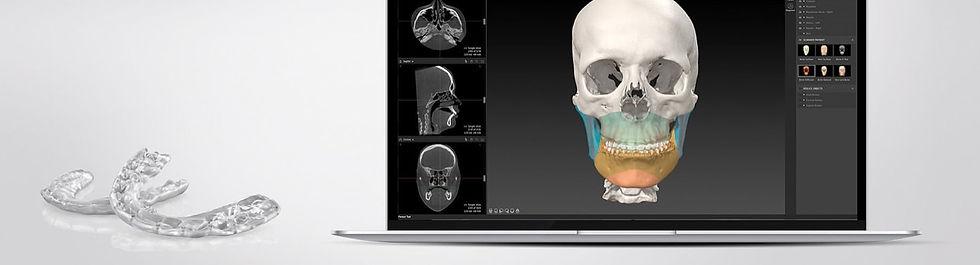 Jaw surgery.jpg