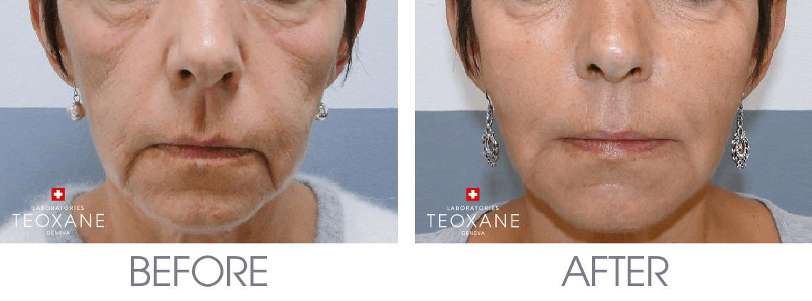 Facial voluming and contouring