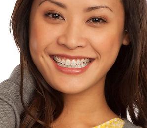 Clarity advanced braces.jpg
