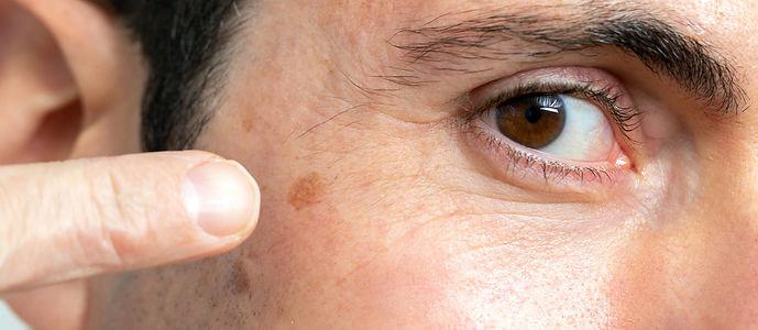 Skin melanoma image