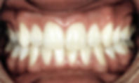 White fillings front teeth