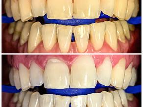 Blanqueamiento Dental: Todo lo que debes saber.