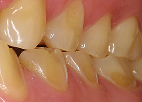 Erosión Dental: El mal de nuestra época.